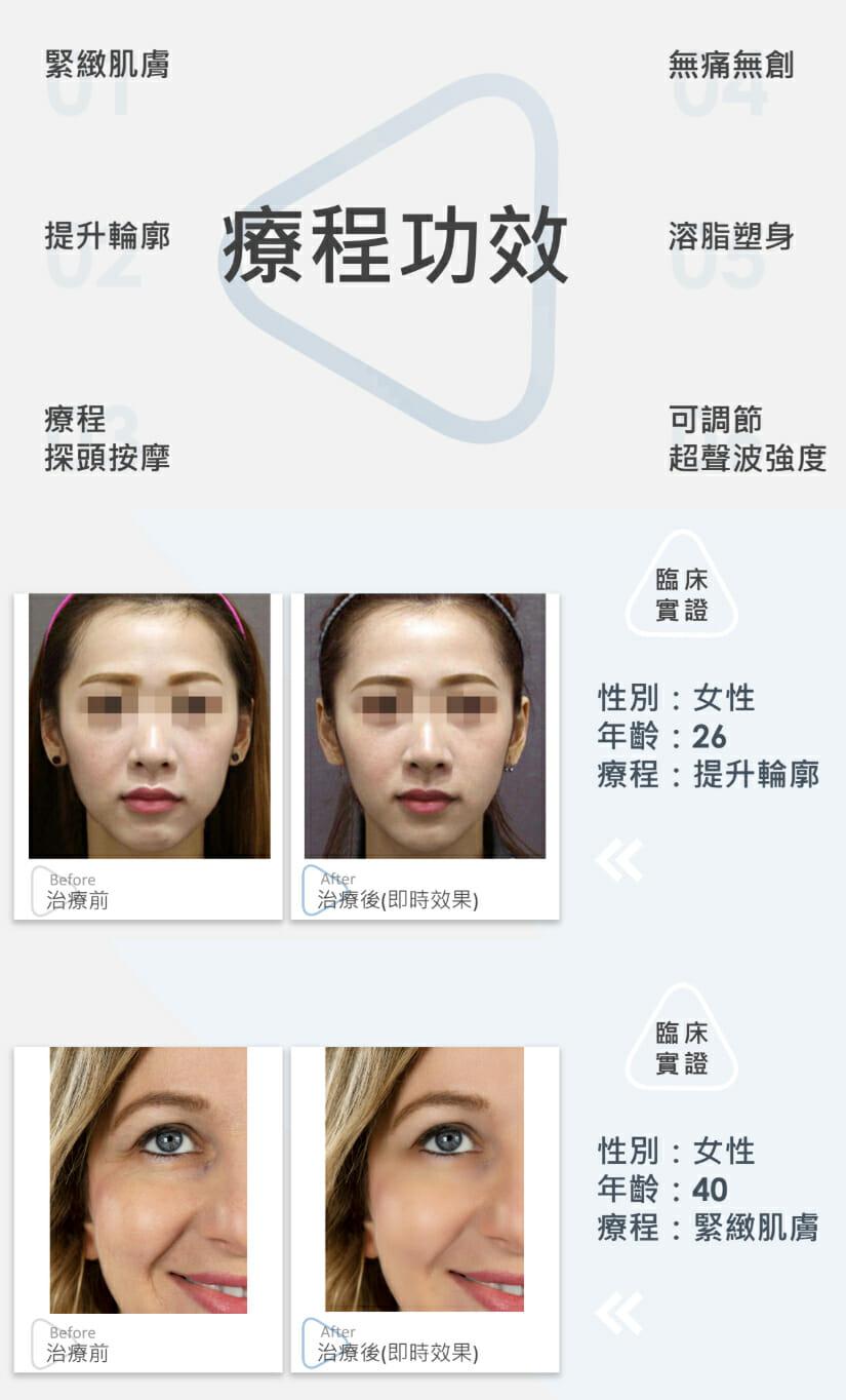 韓式祛肚紋緊緻療程