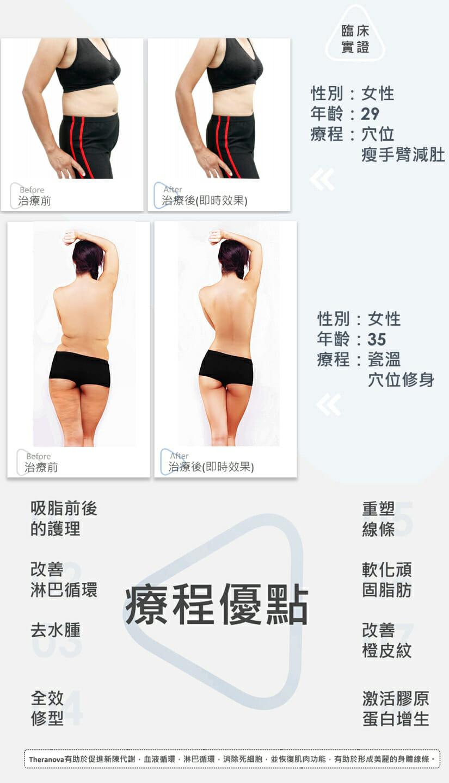 韓式瓷溫激瘦療程